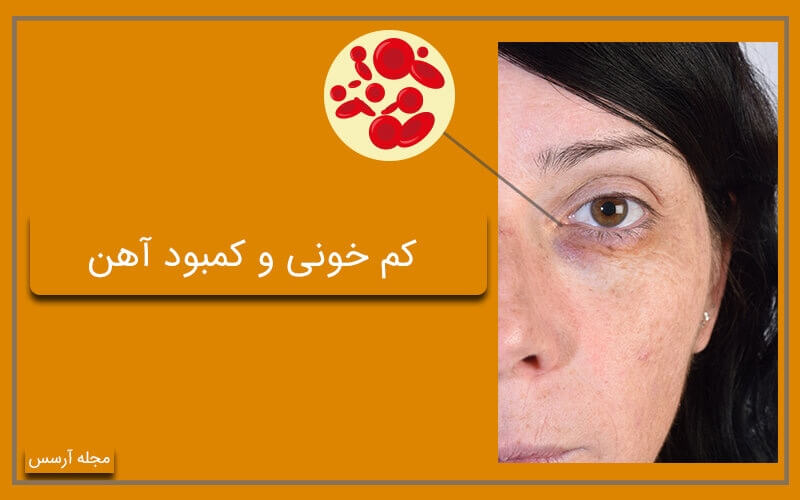 کم خونی علت کبودی زیر چشم شما است